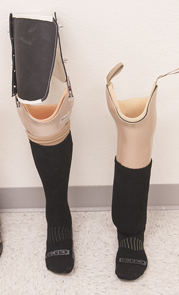 ABILITY Prosthetics and Orthotics Puts Patients First